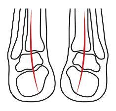 Abbildung eines Gelenk Hohlfußes