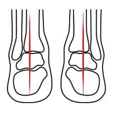 Abbildung eines Gelenk Normalfußes